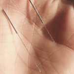 acupuncture needles in the palm of a hand